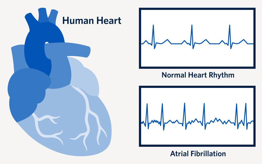 Graphic depicting normal heart rhythm versus atrial fibrillation