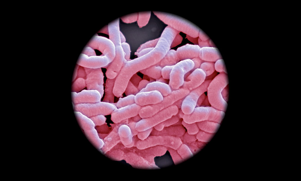 Looking at gut microbes through a microscope